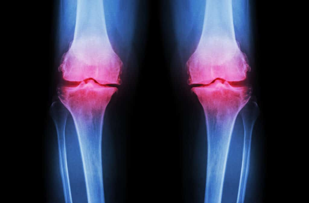 x-ray of knee with osteoarthritis